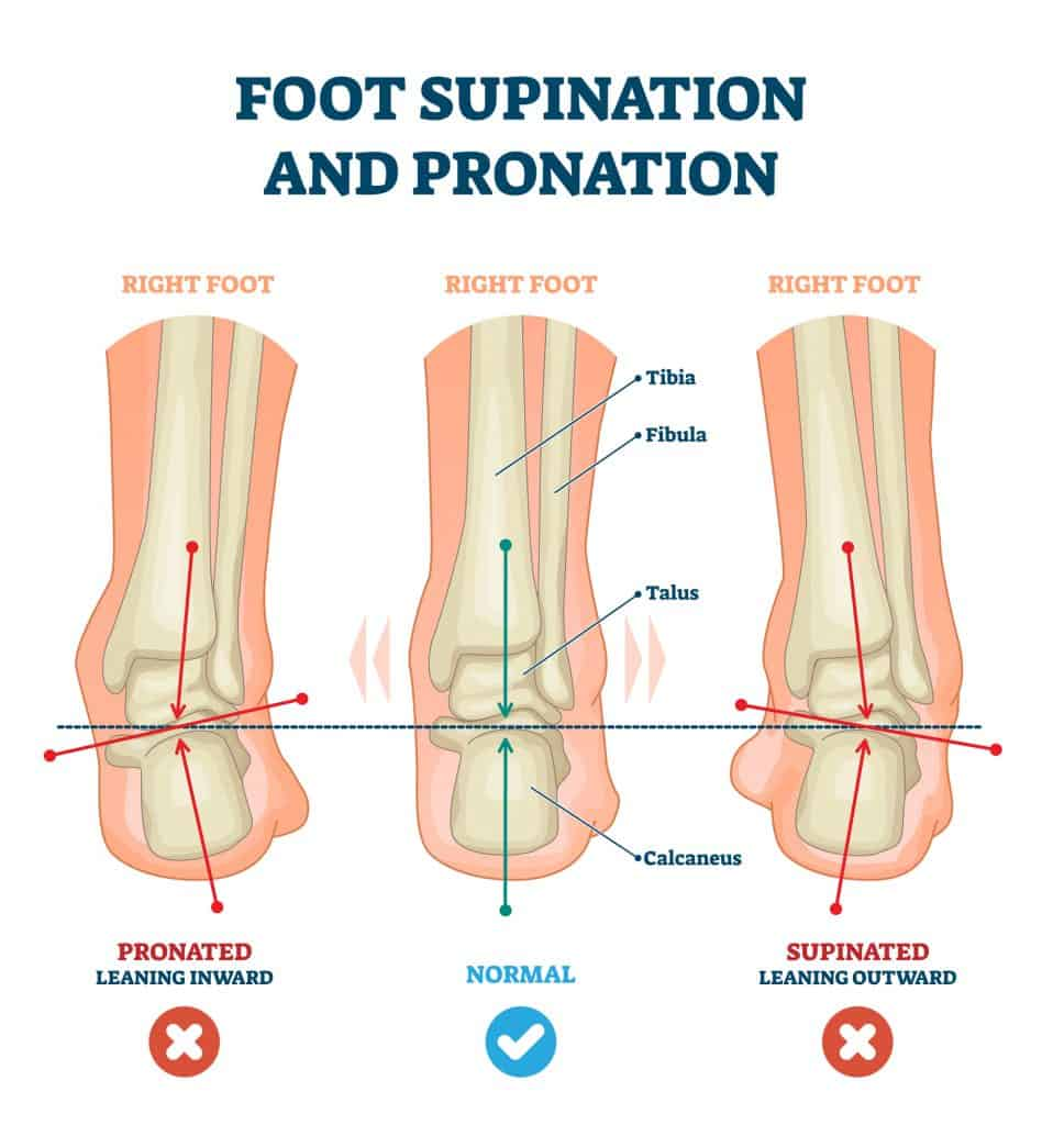 Foot supination and pronation vector illustration. Labeled medical scheme with incorrect leg joint movement. Educational diagram with pronated, normal and supinated compared examples with bone titles.