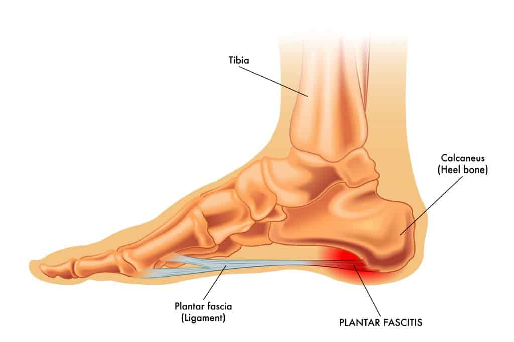 cartoon image of the foot showing plantar fasciitis for education in an article about plantar fasciitis relief